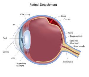 retina detachment diagram