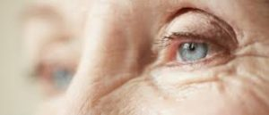 How Do Cataracts Affect My Vision?