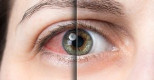 dry eye difference